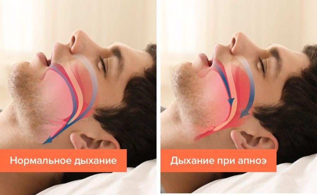 Лечение апноэ в Ростове